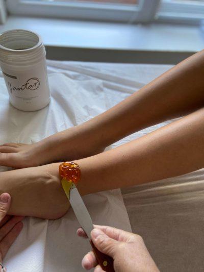 uklanjanje dlaka šećernom pastom